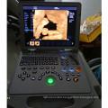 portable ultrasound scanner handheld ultrasound machine dopplers