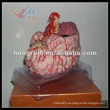 Modelo de la arteria cerebral ISO, modelo de anatomía cerebral