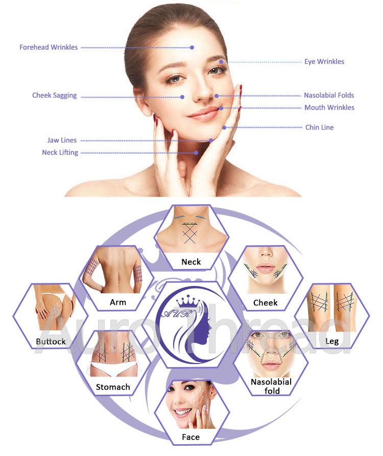 Hot Medical Skin Care Pdo Thread Lift Face