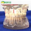 DENTAL07(12566) прозрачный патологической модели для взрослых зубов для стоматологического исследования и коммуникации