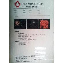 Departamento de CT / DR / MR Radiación médica Laser White Film Shanghai