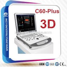 Máquina médica de la ultrasonografía cardíaca del ordenador portátil 3D y 15 '' máquina médica médica de la ecografía del doppler médico color del LCD 3D