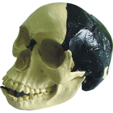 Medical Anatomic Model Bill Toledo Human Skull