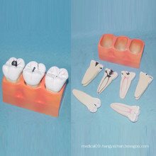 Human Dental Care Teeth Anatomy Model for Teaching (R080117)