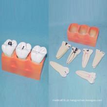 Modelo de Anatomia de Dentes de Cuidados Odontológicos Humanos para Ensino (R080117)