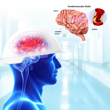 casco de terapia de fotobiomodulación para accidente cerebrovascular hemorrágico