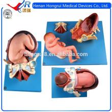 Processo de entrega ISO do feto termo, simuladores de parto