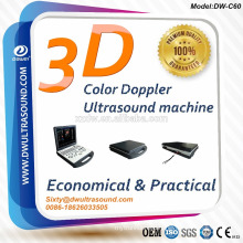3D doppler ultrasound for Cardiac Vessel Liver Kidney Pediatrics & mobile color doppler ultrasound machine price