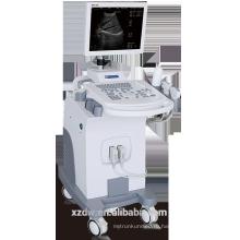 Се вагонетки ч/б ультразвуковой сканер с 15-дюймовый LED-монитор ультразвукового диагностического аппарата