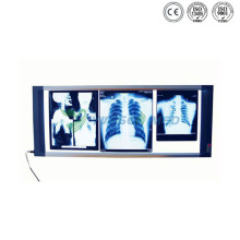 Ysx1706 Krankenhaus X Ray Film Viewer