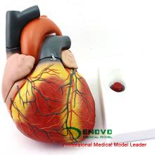 HEART11 (12487) Neues übergroßes 4 x lebensgroßes Herz-Anatomiemodell, getrennt in 4 Teile