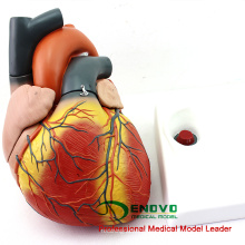 HEART11 (12487) New Oversize 4xlife size Modelo de anatomía del corazón Separado en 4 partes