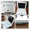 high resolution 3D 4D mini color doppler ultrasound machine DW-500
