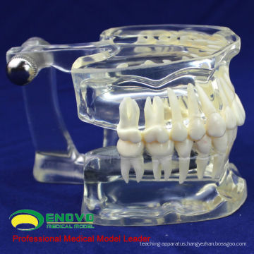 DENTAL11(12571) Human Adult Natural Size Transparent Standard Dental Teach Models