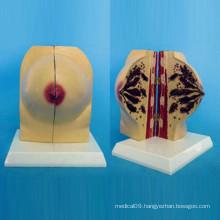 Normal Female Breast Anatomy Model for Medical Teaching (R150106)