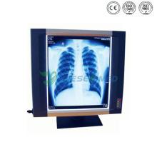Ysx1704 Hospital X Ray Film Viewer