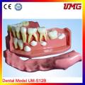 Dental Education Teeth Model for Wholesale