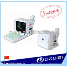2 d máquina portátil de diagnóstico por ultrasonido