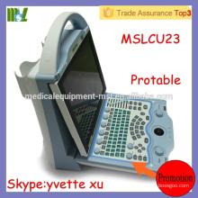 MSLCU23M Big Promotion Cheap Full Digital Color Doppler Ultrasound scanner laptop ultrasound machines price
