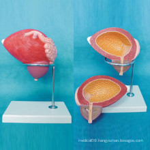 Human Bladder Enlarged Medical Anatomical Model (R110306)