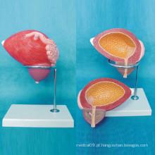 Modelo Anatômico Médico Ampliado da Bexiga Humana (R110306)