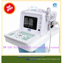 CE Cheapest portable ultrasound machine china portable ultrasound