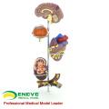 HEART21(12497) Medical Anatomical Human Hypertension Model