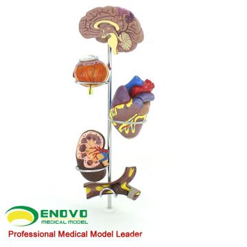 HEART21 (12497) Modelo anatómico médico de la hipertensión humana
