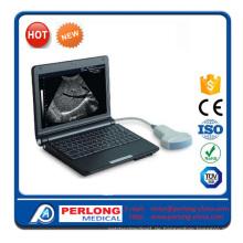 Vollständige digitale Ultraschall-Scanner (PT3000D1)