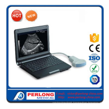 Full Digital Ultrasound Scanner (PT3000D1)
