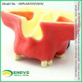 VERKAUFEN Sie das zahnärztliche Sinus-Aufzug-Praxis-Modell 12615, das für das Üben benutzt wird