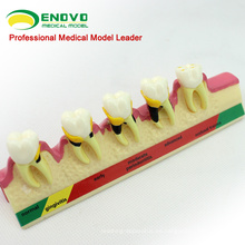 Super September SELL 12585 Classification Model Periodontal 2x Life Size Teeth Disease