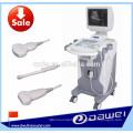 Мобильные УЗИ и Б Ultrasoud Тип сканер с тележкой DW350