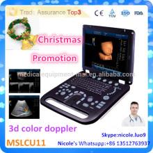Weihnachtsförderung !! CU11-i New Advanced 3D Ultraschall Maschine Preis und 3d Farbe Doppler Ultraschall für Klinik