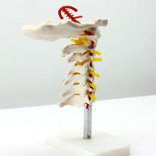 VERTEBRA03 (12386) Medical Science Columna vertebral cervical con arteria del cuello, modelo de vértebras de anatomía médica