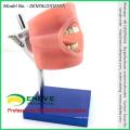 DENTAL01(12557) Preparation Operation Dental Study Manikin