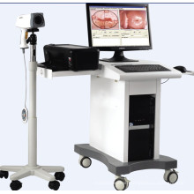 Cheap Electronic Colposcope for Sale