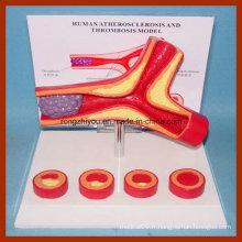 Modèle d'athérosclérose et de thrombose de l'artère humaine