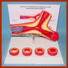 Human Artery Atherosclerosis and Thrombosis Model