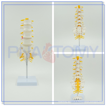 PNT-01212 Customized anatomical lumbar vertebrae with herniated disk for medical use