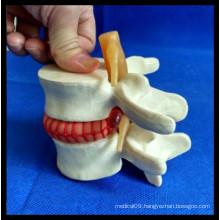 Enlarge Demonstration Lumbar Disc Herniation Model