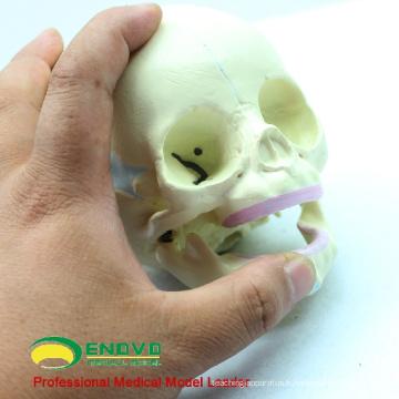 SKULL04 (12330) Modèle de crâne foetal de 30 semaines de sciences médicales, modèle de crâne infantile anatomique