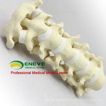 L'épine cervicale artificielle d'anatomie médicale de la vente en gros 12312, l'orthopédie pratiquent l'os de simulation