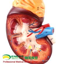 VERKAUFEN 12434 Vergrößern Modell Niere, 2-teilig, Anatomie Harnwege