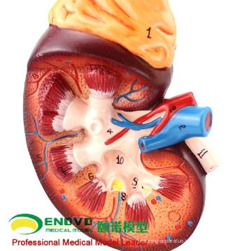 SELL 12434 Enlarge Model Kidney ,2 Part , Anatomy Urinary Models