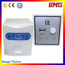 China Alibaba Wholesale Cordless Reader with X-ray Film Cassette