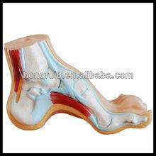 ISO Arched Foot, нормальная и плоская модель ноги, модель анатомии ног