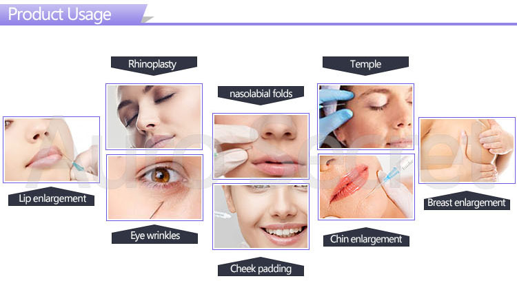 Dermal Fillers Korea