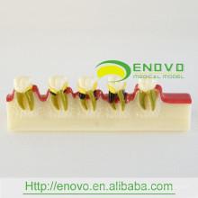 EN-M8 Modelo de desarrollo de enfermedad dental / Modelo de enfermedad dental