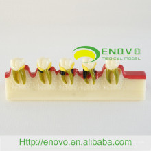 EN-M8 Dental Disease Developing Model/Dental Disease Model